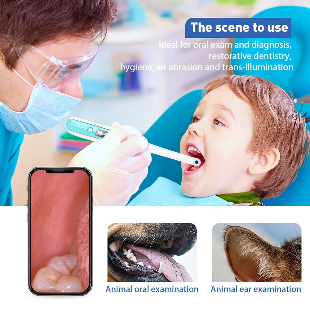 Sem fio wi fi endoscópio dental oral