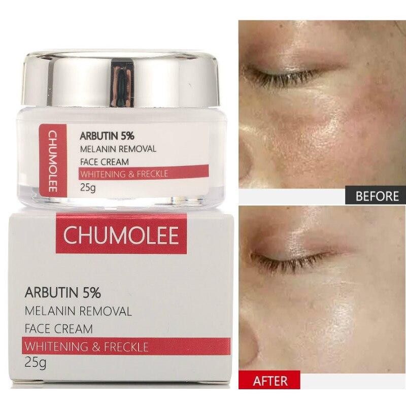 CHUMOLEE Alpha Arbutin 5% Whitening Freckle Facial Cream Melasma Remove Acne Dark Spots Melanin Pigment Moisturizer Face Care