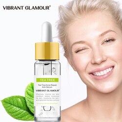 VIBRANT GLAMOUR Tea Tree Acne Eliminating Face Serum Remove Acne Scar Shrink Pores Oil Control Skin Care Whitening Moisturizing