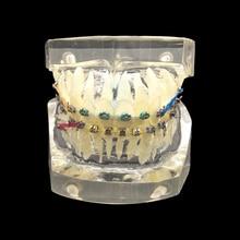 1 шт. Стоматологическая Ортодонтическая Учебная модель зубной ортодонтический с красочными кронштейнами для аккуратных и неправильных моделей на выбор