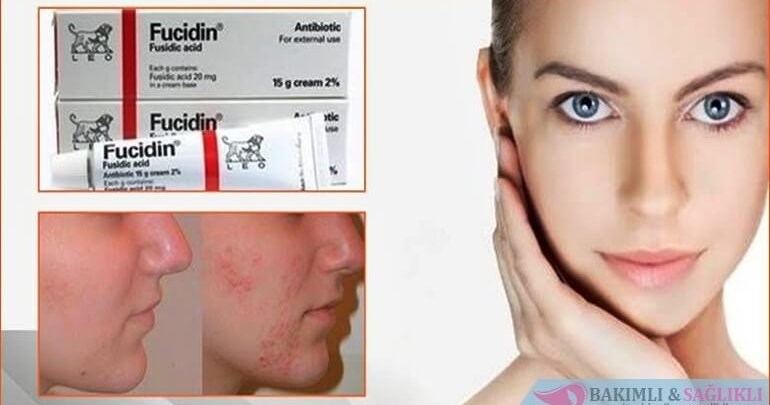 Acne Cream Eliminates Acne 20g Fucidin Cream Face Skin Care Machine Aliexpress