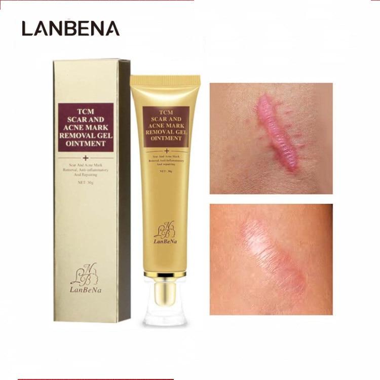LANBENA Acne Scar Remove Cream Repair Stretch Mark Ointment Gel Anti Acne Treatment Face Serum Whitening Surgical Scar Skin Care