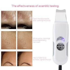 Image 5 - Beauté étoile ultrasons peau épurateur visage nettoyant profond visage nettoyage pores Peeling points noirs enlèvement ultrasons peau épurateur