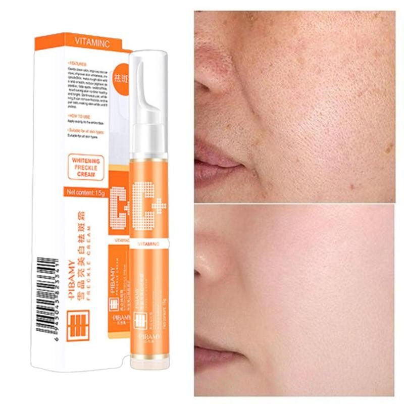 15ml Instant Blemish Removal Gel Vitamin C Whitening Anti Freckle Cream Pen Effective Remove the Freckle Pigmented Melanin Spots