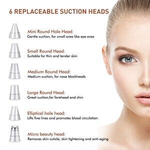 Image 2 - Removedor de espinillas, limpiador de poros, succión al vacío, exfoliación de acné, eliminación de espinillas, limpieza Facial profunda, Zona T, SPA de belleza