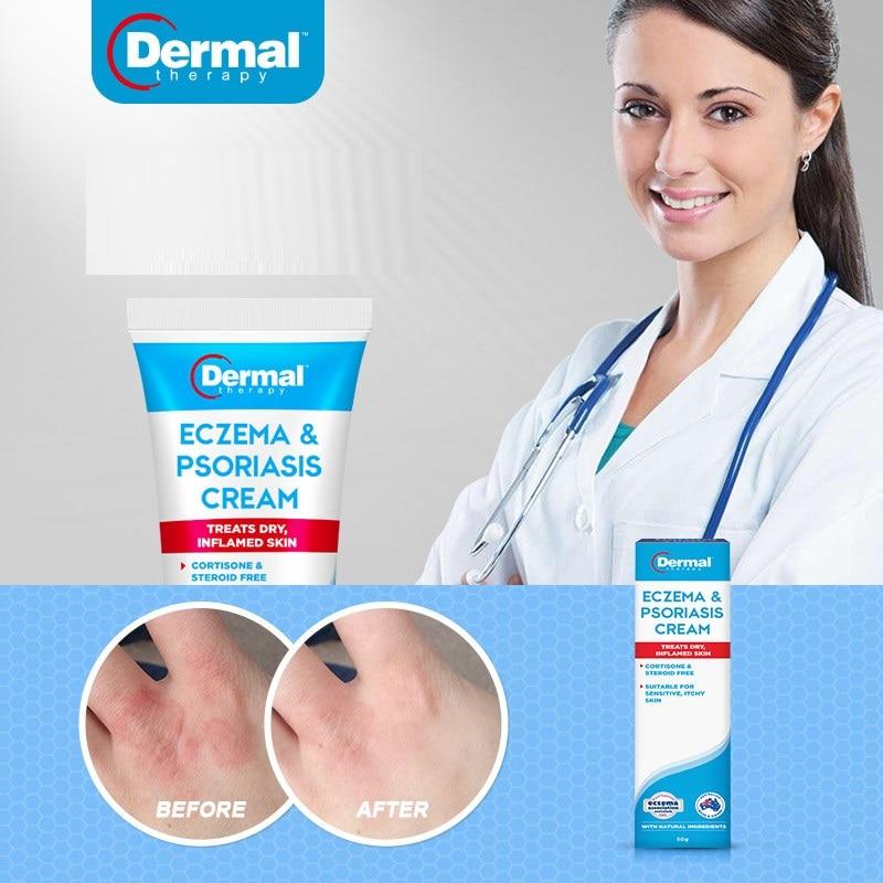 dermal cream for psoriasis