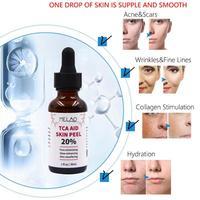 30ml Trichloroaectic Acid 20% Skin Peel Pore Minizing Wrinkles Spots Skin Care Face Serum 5