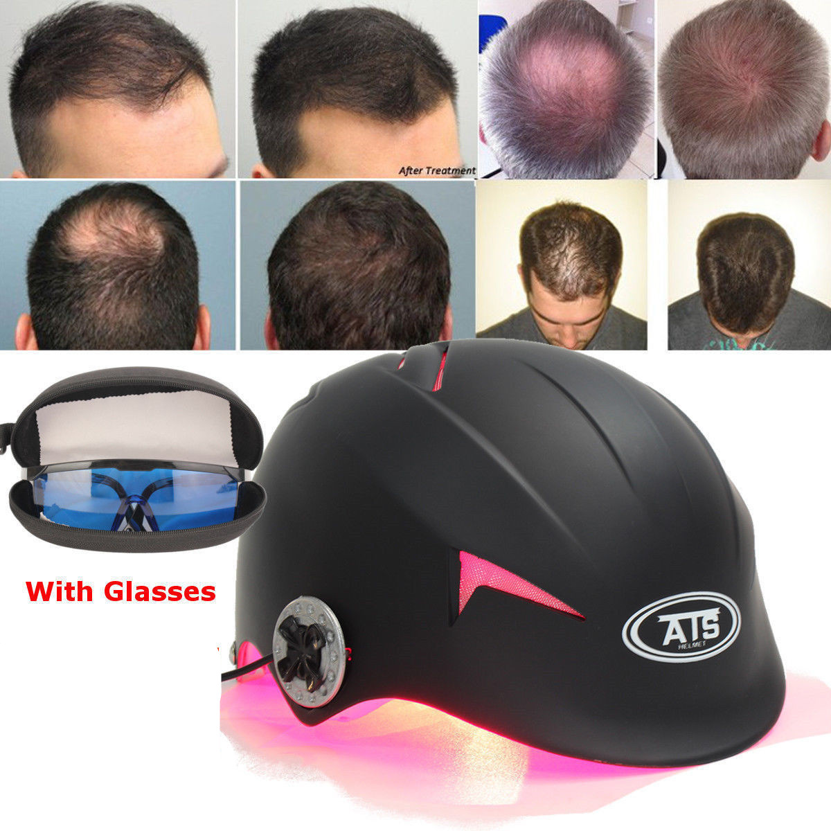 128 Diodes Laser Cap Hair Loss Treatment Hair Regrowth Promoter Building Fibers Cap Therapy Stimulate Hair Follicle Regeneration
