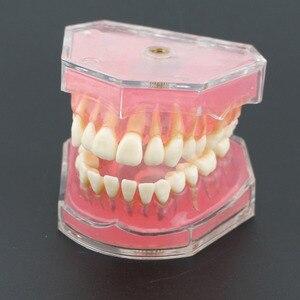 Image 5 - Dental Studie Lehre Modell Standard Modell Abnehmbare Zähne Weichen Gum ERWACHSENE TYPODONT Modell