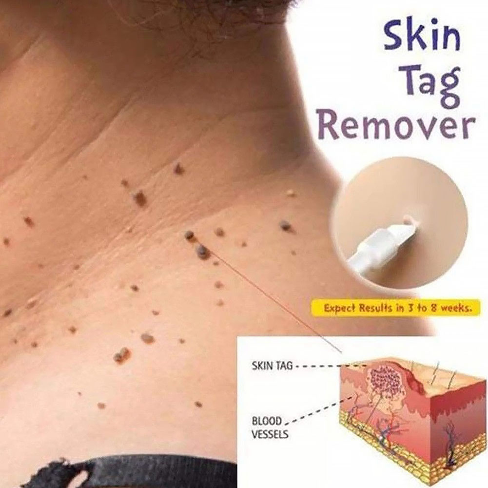 Body Effective Mole Medical Remover Skin Tag Skin Care Wart Skin Kill 10ml
