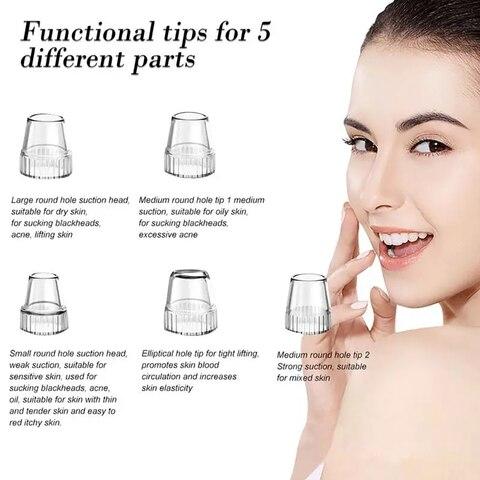 graxa acne remocao da pele poros cuidados