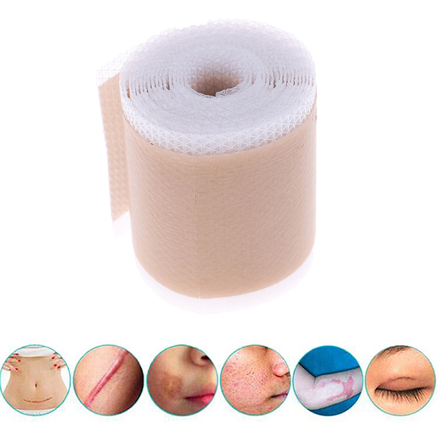 4x150cm Efficient Surgery Scar Removal Silicone Gel Sheet Therapy Patch for Acne Trauma Burn Scar Skin Repair Scar Treatment 3