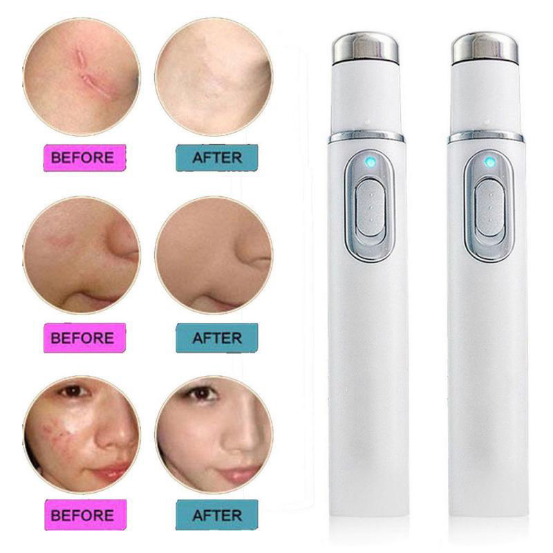 Blue Light Therapy Varicose Veins Treatment Laser Pen Soft Scar Wrinkle Removal Treatment Acne Laser Pen 5