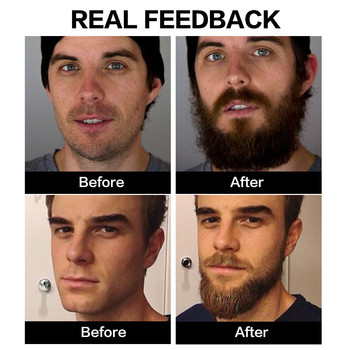 2Pcs Beard Growth Enhancer Thickener Beard Essential Oil for Men Beard Growth Anti Hair Loss Products Moustache Fast Grow Beard 3