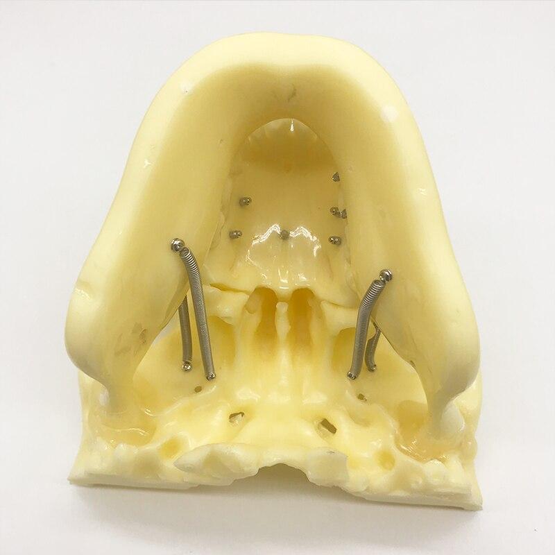 m2016 implante pratica estudo dentes dentarios modelo 04