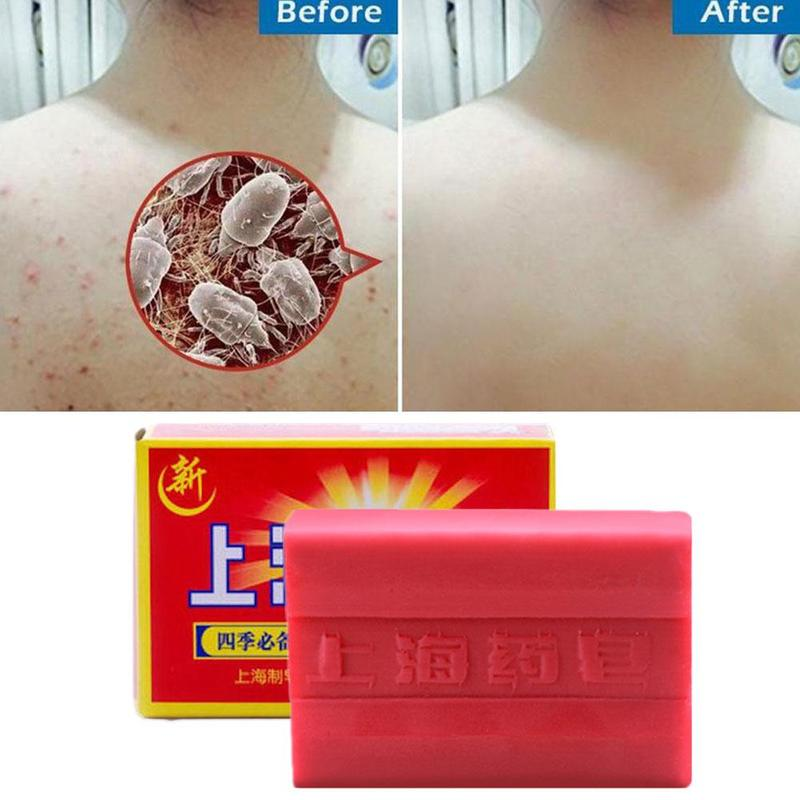 90g Red China Medicated Soap Conditions Acne Psoriasis Seborrhea Eczema Anti Fungus Bath Healthy Soap Slimming Body Cream