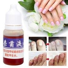 Tratamiento de reparación de uñas con hongos 10ml, suero para eliminar onicomicosis de los dedos del pie, tratamiento de reparación de hongos en las uñas para el cuidado de la piel sana