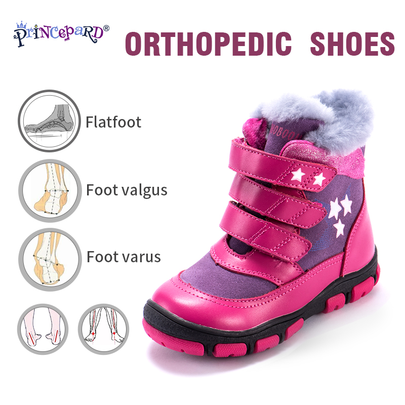 Princepard Winter Orthopedic Shoes For Kids 100% Natural Fur Lining Genuine Leather Orhopedic Boots Boys Girls 22-36 Size