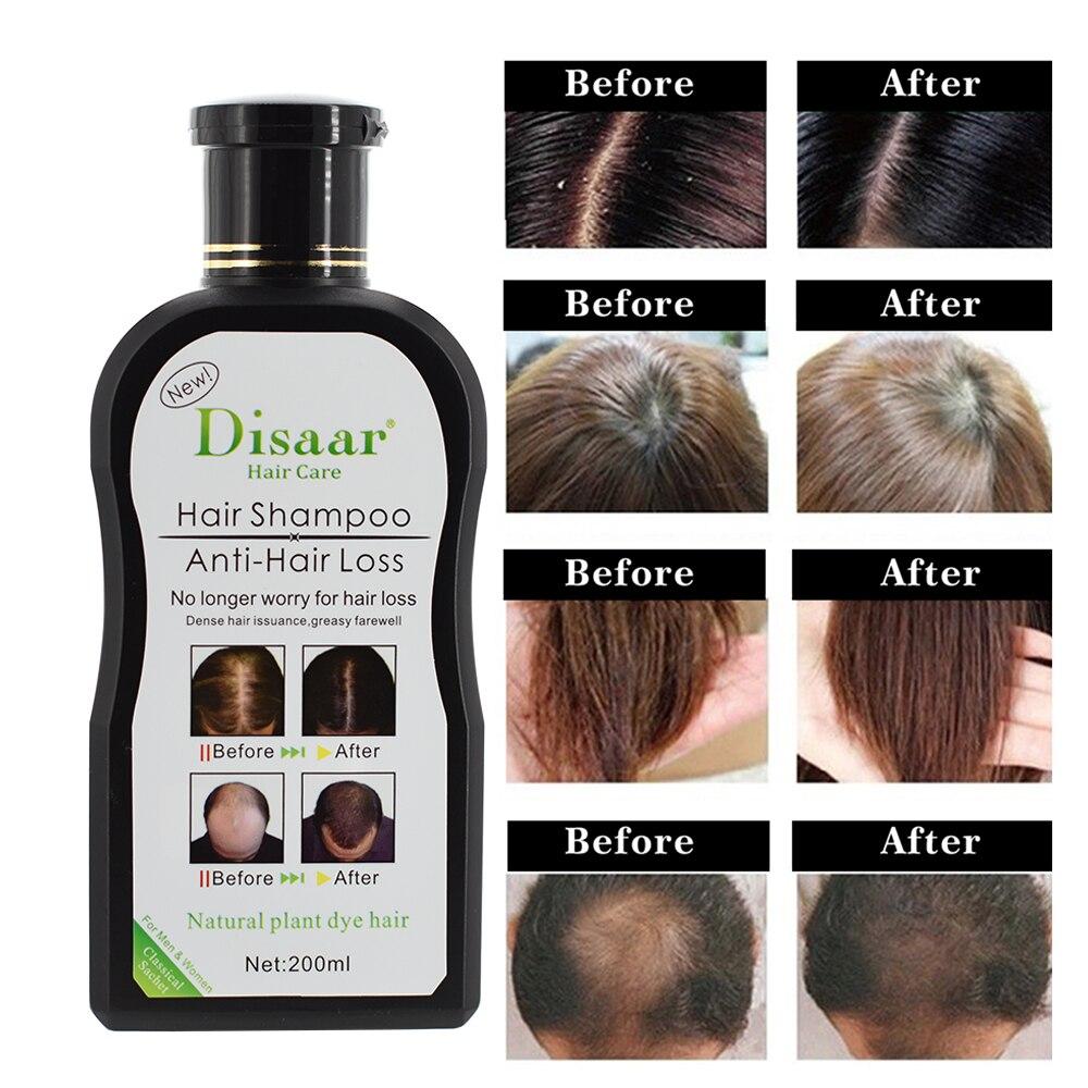 Professional Hair Growth Shampoo Preventing Hair Loss Chinese Hair Regrowth Product Hair Treatment For Men Women Black Hair Dye Men S Hair Loss Products Aliexpress