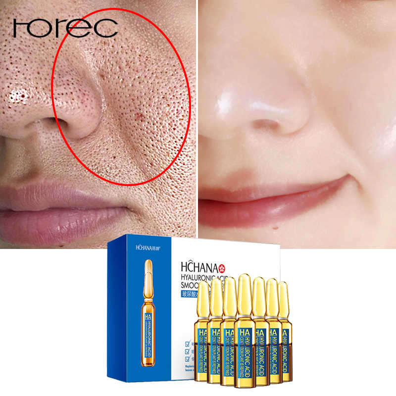 ROREC Hyaluronic Acid Ampoule Face Serum Shrink Pores Anti-Ance Nicotinamide Whitening Moisturizing Anti-Aging Wrinkle Skin Care