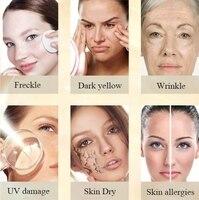 CHUMOLEE Alpha Arbutin 5% Whitening Freckl Cream Melasma Pregnancy Remove Acne Dark Spots Melanin Pigment Moisturizer Face Care 6