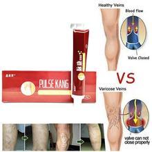 Varicose Veins Treatment Vein Relief Phlebitis Vasculitis Angiitis Inflammation Blood Vessel Herbal