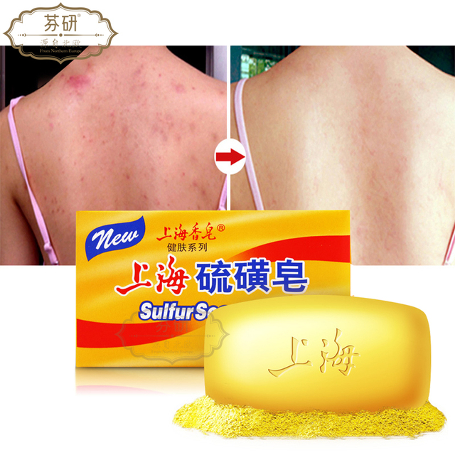 Shanghai sulfur soap oil-control acne treatment blackhead remover soap 125g Whitening cleanser Chinese traditional Skin care 4