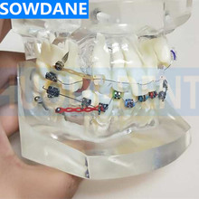 Transparent Dental Orthodontic Mallocclusion Model with Mental Ceramic Brackets Archwire buccal tube for Patient Communication