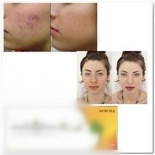 Import 0.12% 40% Licorice Extract Nicotinamide Arbutin Antioxidant Brightening Acne Print 20g