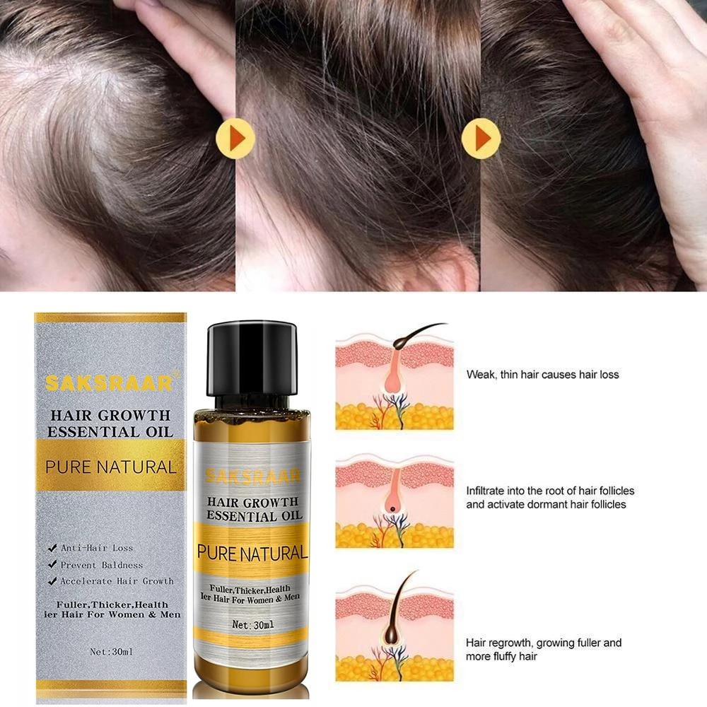 Hair Care Hair Growth Essential Oils Essence Original Authentic 100% Hair Loss Liquid Health Care Beauty Dense Hair Growth Serum 2