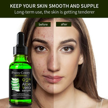Pielęgnacja twarzy trądzik usuwanie blizn esencja serum trądzik plamy pielęgnacja skóry leczenie wybielanie usuń trądzik pielęgnacja twarzy serum