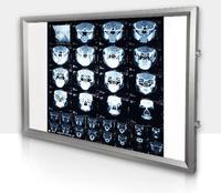 100-240V Hastane x-ray görüntüleme lambası Diş ortopedik Dokunmatik kontrol X-ray Film Aydınlatıcı ışık kutusu x-ray Görüntüleyici