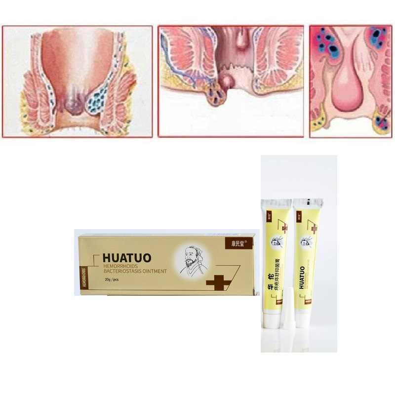 Nova huatuo hemorróidas pomada creme chinês alívio da dor hemorróidas internas pilhas externo fissura anal gesso médico