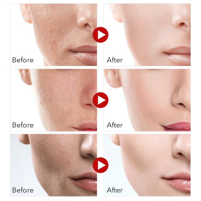 Facial Care Set