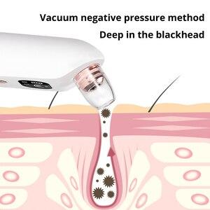 Image 2 - Darsonval ferramentas removedor de cravo para acne poros cleaner beleza cuidados com o rosto blackhead aspirador de pó preto pontos espinha removedor ferramenta