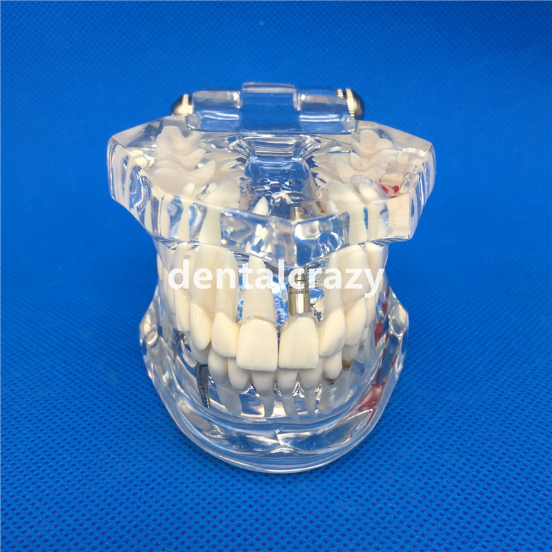 cheap modelo ensino dental 02