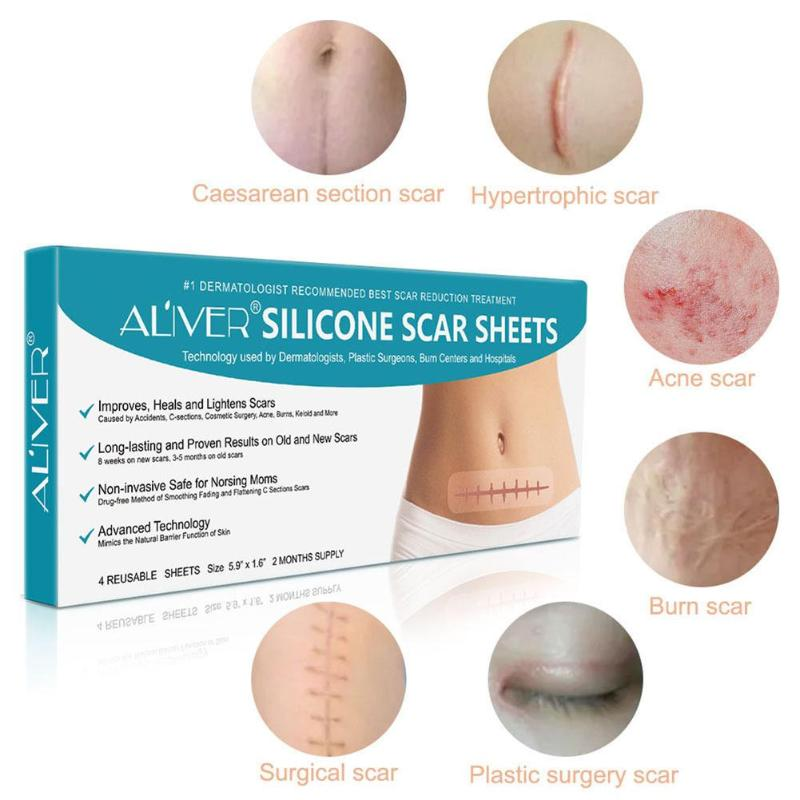 Safe Scar Removal Sticker Acne Scar Non-toxic Skin-friendly Practical Therapy Delicate Design Long-lasting Plaster Set