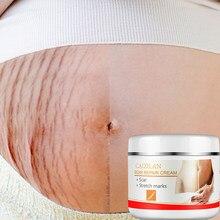 Marca de estiramento removedor cicatrizes gravidez ance creme reparação maternidade anti envelhecimento winkles endurecimento cuidados com as estrias gordura tratamento creme