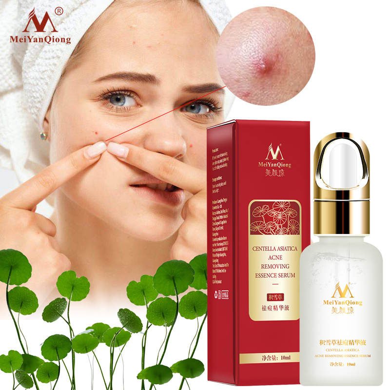 Centella Asiatica Acne Removing Essence Face Serum Liquid Moisturizing Anti Wrinkle Shrink Pore Control Oil Whiten Skin 10ml