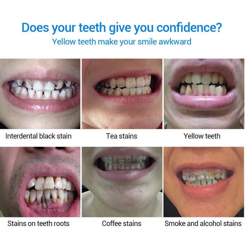 LANBENA Sbiancamento Dei Denti Gel Siero Dentale Igiene orale Igiene Efficace Rimuovere Le Macchie Placca Pulizia Dei Denti Essenza Dentifricio 10ml