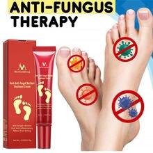 Травяной крем для ног противогрибковая инфекция паронихия против