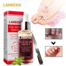 Lanbena reparação de unhas essência soro fúngico tratamento de unhas remover onychomycosis toe nutrir iluminar mão pé cuidados com a pele