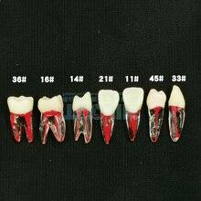Dentist-Tool Endodontic-Model Canal-Teeth-Model Practice Student for 2pcs