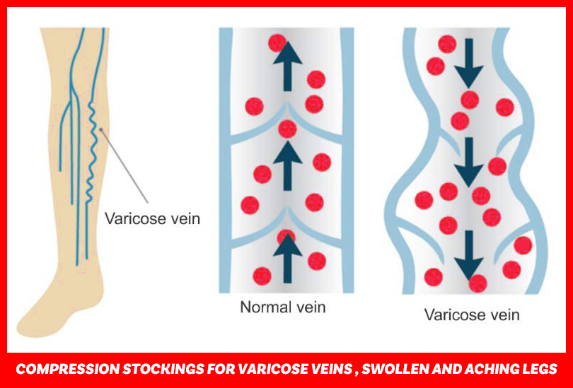 Varcoh Compression Stockings for Varicose Veins , Swollen And Aching legs.