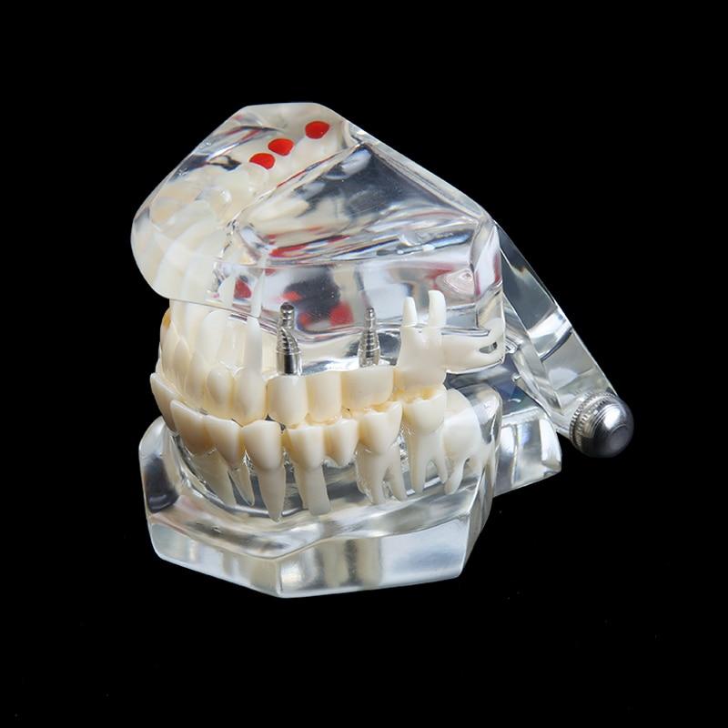 para o ensino médico pvc resina oral