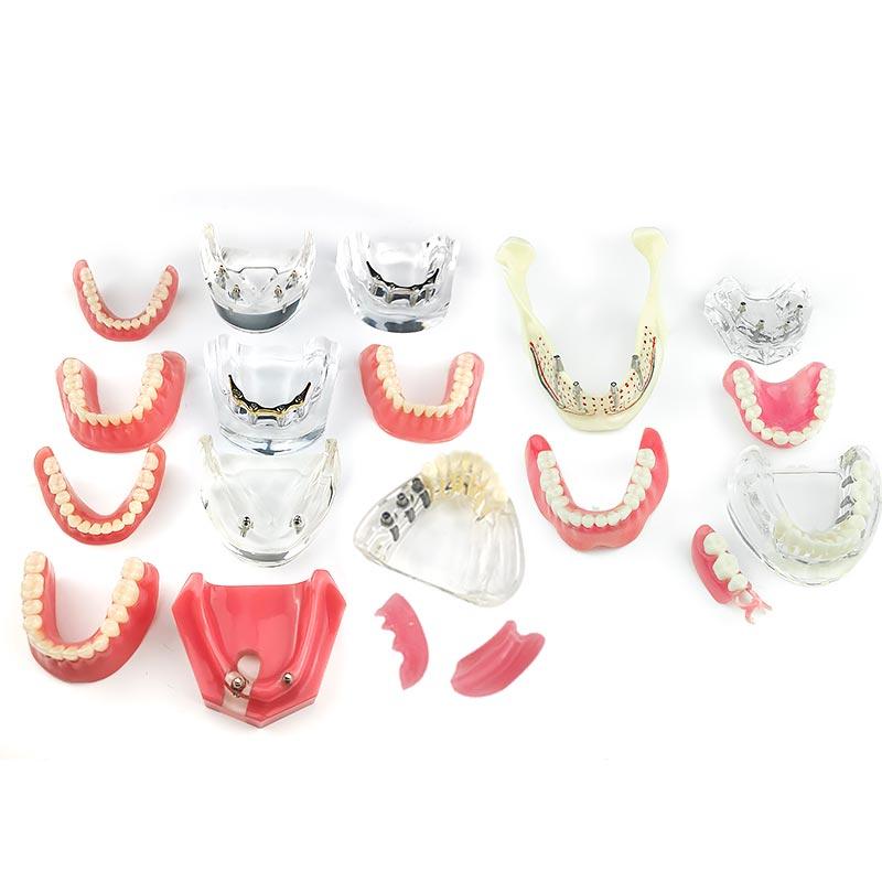 Dental Overdenture Teeth Model Removable Interior Mandibular Lower Teeth Model Mandibular with Implant for Tooth Teaching Study