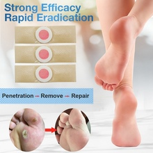 Foot Corn Killer Calluses Plantar Warts Thorn Pain Relief Plaster Care Tool Removal Medical Sticker Toe Protector