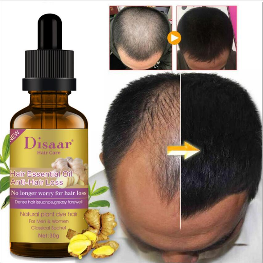 Hair Essential Oil Hair Care Oil Hairdressing Hair Mask Ginger King Essential Oil Dry and Damaged Hair Nutrition Repair fork