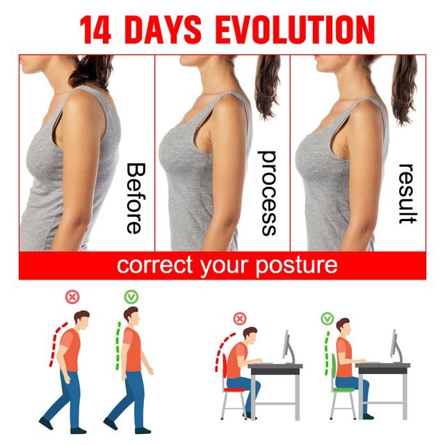 VIP DropShipping Medical Clavicle Posture Corrector Adult Children Back Support Belt Corset Orthopedic Brace Shoulder Correct 2