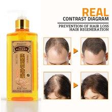 Настоящий Профессиональный имбирный шампунь для волос 300 мл, густой, шампунь против выпадения волос